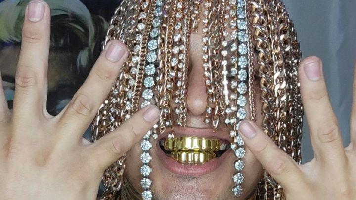 FOTOS: El rapero Dan Sur pasa a la historia al implantarse cadenas de oro en el cuero cabelludo